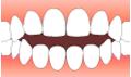 すきっ歯で悩んでいる